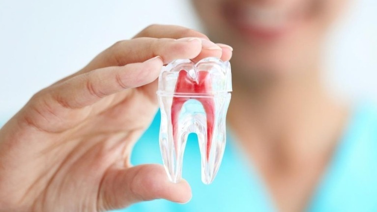 Benefits of Root Canal Treatment & Frequently Asked Questions - Woodbridge Hill Dental Practice